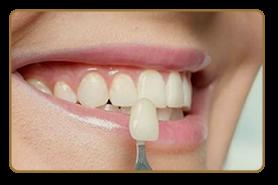 lente-de-contato-dental-amanda-viecilli-2
