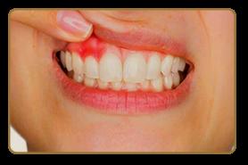 tratamentos-gengivais-amanda-viecilli-2